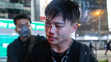 An injured demonstrator is detained by a man believed to be a police officer dressed as a protester on Sunday.