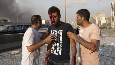People help a man wounded in a massive explosion in Beirut after the massive explosion.
