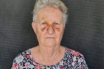 Brisbane resident Robyn Abell was knocked over by someone on an escooter while she was on her way to meet family at the local markets in West End.