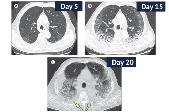 CT scans from a 77-year-old man with COVID-19 in China over 10 days, showing ground-glass opacity of the lungs and lesions.  The man died 10 days after the final scan.
