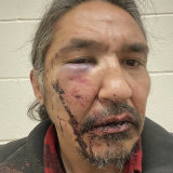 This March 10, 2020 photo provided by Chief Adam, shows the bloodied face of Athabasca Chipewyan First Nation Chief Allan Adam after a confrontation with Royal Canadian Mounted Police.