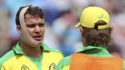 Historic call: Concussion subs approved for all international cricket
