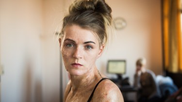 Vicky Knight bares her real-life scars in Dirty God.