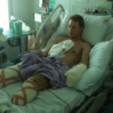 Curtis McGrath in hospital after his injury.