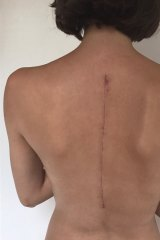 Charlee Fraser underwent major spinal surgery after being diagnosed with scoliosis.