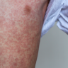 Measles outbreak takes hold in Brisbane, 23 cases now recorded