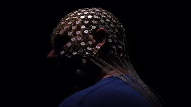 A patient wearing a high density EEG sensornet that monitors sleep brain waves in Sydney.