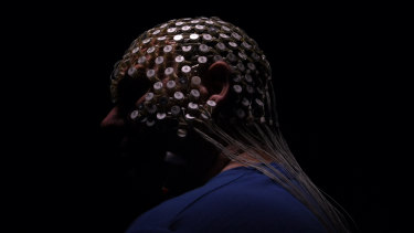 A patient wearing a high density EEG sensornet that monitors sleep brain waves in Sydney.