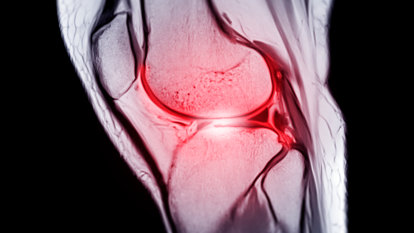 They're three letters athletes dread. What is a ruptured ACL and how do you fix it?