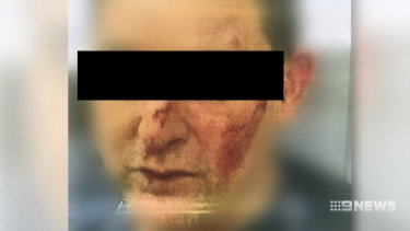 A prison officer after the attack.