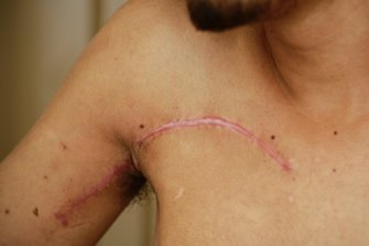 Researchers have developed a treatment to significantly reduce scarring by targeting a specific gene that is central to the healing process.