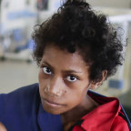 Patricia Oome, 14, a week after being admitted to hospital for severe malnutrition and tuberculosis.