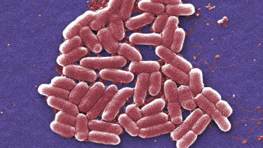 A colourised scan of E. coli bacteria taken using an electron microscope. E. coli can cause sepsis.