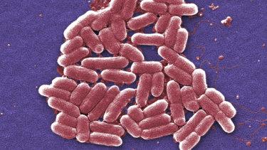 A colourised scan of E. coli bacteria taken using an electron microscope. E. coli can cause sepsis.