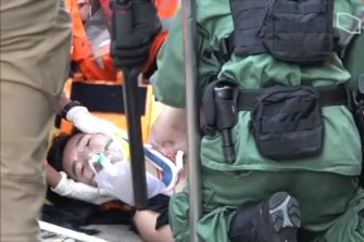 The protester, who was shot in the chest, has undergone surgery and is expected to survive.