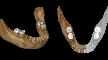 This combination of images provided by the Max Planck Institute for Evolutionary Anthropology, Leipzig, shows two views of a virtual reconstruction of the Xiahe mandible. At right, the simulated parts are in grey.