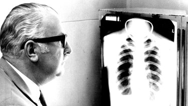 Dr. George Randmae studies a chest x-ray looking for signs of T.B.