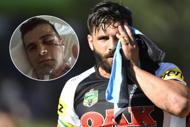 Josh Mansour suffered a face injury in 2018.