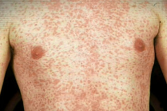 Measles comes with a painful rash.