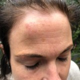 Emma Walters, wife of union leader John Setka, says she was assaulted by him. These are the images of her head injury