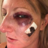 Woman calls for change after cop's assault charge dismissed