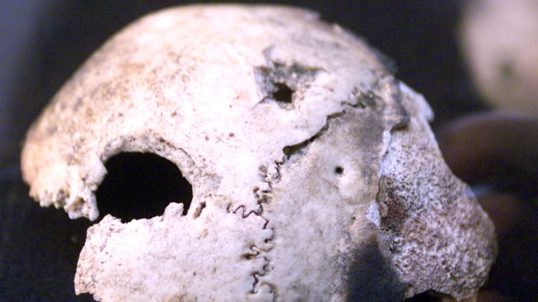 Hitler's supposed skull.