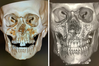 Chris Lawrence's X-ray prior to surgery (left) and after surgery with plates and pins inserted (right).