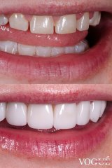 Before and after shots of Laura Gregory's teeth.