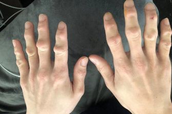 Arthritis in the fingers of a Chinese meatworkerwho has worked for five years at Midfield Meats.