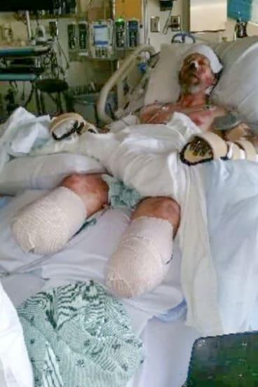 Greg Manteufel in hospital.