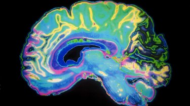 New research has found the brain's immune cells are not directly linked to inflammation after an injury.