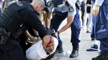 A man is seen bleeding profusely from a head wound incurred during a dramatic arrest in Hyde Park.