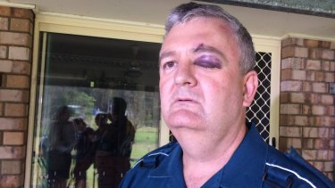 Paramedic Brad Johnson was allegedly bashed in the back of an ambulance by a patient in 2017.