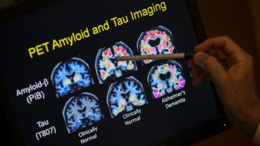 PET scan results from a study on brain function in Alzheimer's disease at Georgetown University Hospital in Washington.