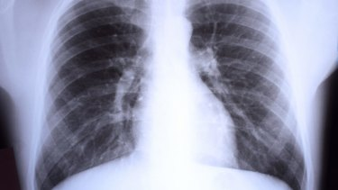 Chest x-rays are an essential part of detecting the severity of the coronavirus.