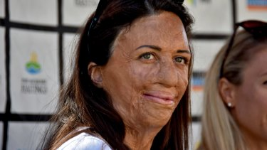 Turia Pitt's 'Monday morning' idea for a page that helps small businesses affected by the fires has had a massive response.