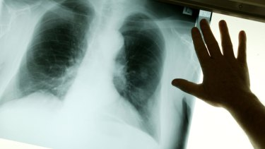 The government has committed to tackling Australia's occupational lung disease crisis.