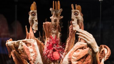 Gunther von Hagens invented plastination in 1977.