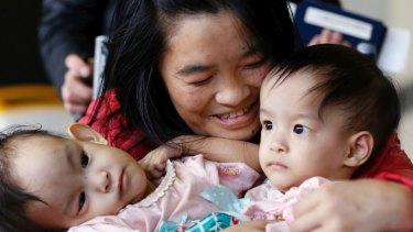 Surgeons at Melbourne's Royal Children's Hospital will attempt to separate 14-month-old conjoined twins, Nima and Dawa.