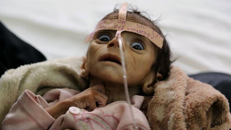 Udai Faisal died on March 24 of acute malnutrition at al-Sabeen Hospital in Sanaa, Yemen.