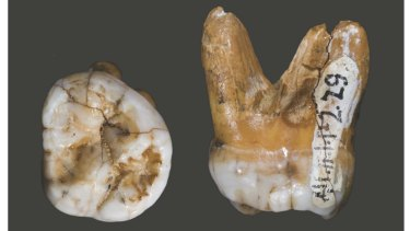 A tooth of a Denisovan, found in a cave in Siberia.