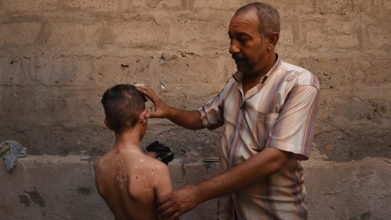 Nadhm Hamid shows the scars on his 11-year-old son Yaser caused by a chemical weapon that came through the roof of his home in Mosul.