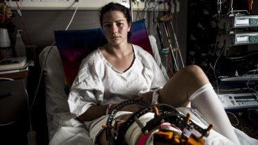 Nikki Ayers had 10 surgeries in 21 days when she was first taken to hospital in 2016.
