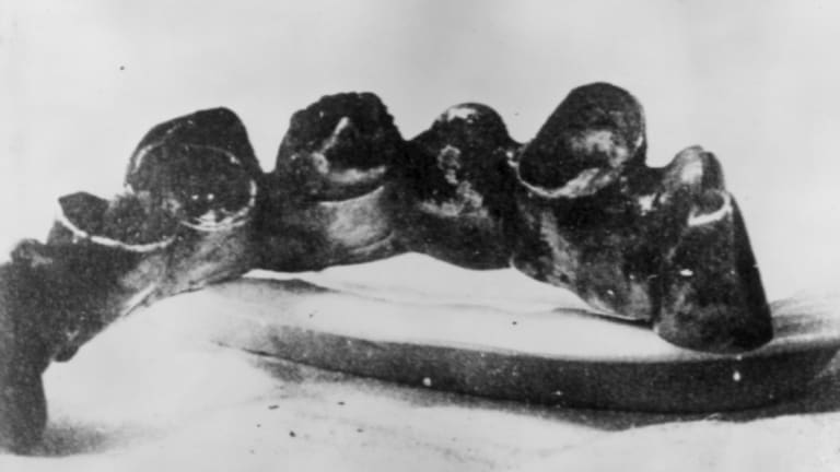 A section of Hitler's front teeth.