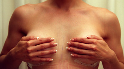 Breast implant ban, recall proposed by TGA