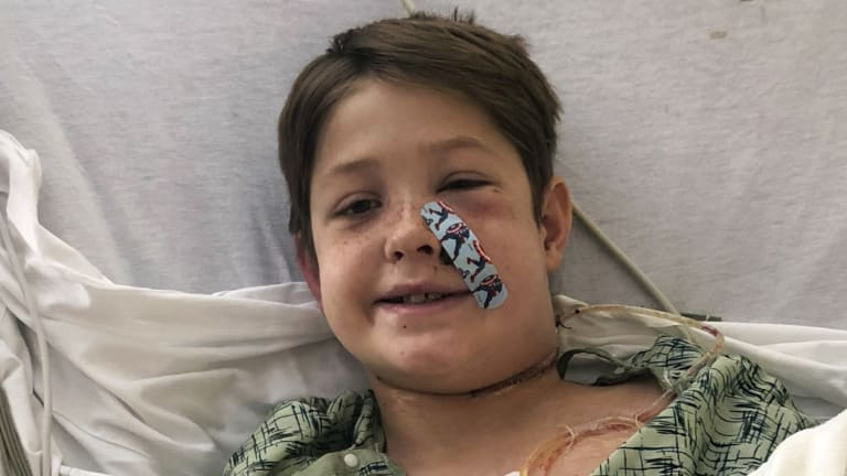 Doctors think Xavier could recover completely.