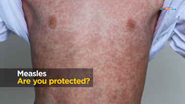 A measles outbreak has now taken hold in south-east Queensland, health authorities warn.