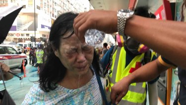A woman gets help to wash pepper spray from her face.