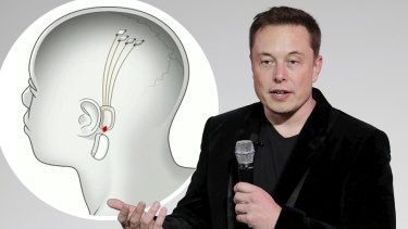 "Elon Musk says his start-up has tested its elaborate interface of ""threads"" - which connects with a chip embedded in the skull - on rats and now wants to begin human trials as soon as next year."