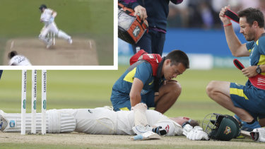 Steve Smith after his terrifying blow to his neck.